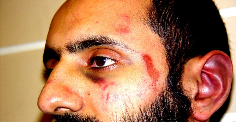 Injury photograph of Babar Ahmad, 2 Dec 2003, taken at Charing Cross police station, London