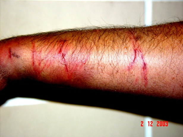 Injuries sustained to my right forearm after a police officer tortured me in 2003